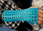 L'esoscheletro 3D personalizzato