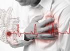 I depositi di calcio nelle arterie possono essere predittivi di un attacco di cuore