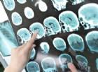 L'impegno nella lotta alla sclerosi multipla da parte della Società Italiana di Neurologia