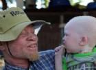 Un albino in Africa