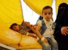 Yemen, l'epidemia di colera sta devastando il Paese