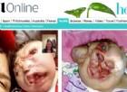 La bambina nata senza faccia sta per compiere 9 anni. I medici l'hanno data per spacciata. Le foto shock