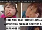 Una bimba ha una malattia così rara che i medici non sanno cosa sia
