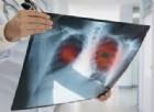 Tumore al polmone: una proteina salva la vita e la diagnosi è low cost