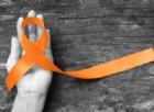 Sclerosi multipla: rischiano le donne con carenza di vitamina D