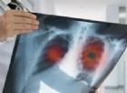 Cancro, l'Università di Salerno scopre biomarcatore per diagnosi precoce