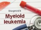 Leucemia mieloide acuta, scoperto un metodo che potrebbe curarla