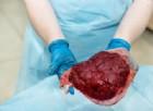 Mangiare la placenta, è moda tra le star. Ma gli studi smentiscono: «nessun beneficio»