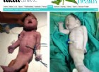 Nasce un neonato 'sirena', ma poche ore dopo muore