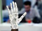 Impiantata una mano bionica a una donna italiana
