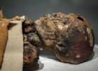 L'epatite non è una malattia moderna: esisteva già 450 anni fa. La conferma da una mummia