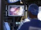 Intervento unico e incredibile: medici riescono a rimuovere un tumore dai polmoni. È la prima volta