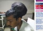 India, rimosso il tumore al cervello più grande al mondo del peso di 1,9 chili