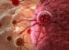 Ricercatori italiani scoprono una nuova terapia contro il cancro al colon