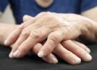 Ecco quali sono le prime cause di morte nelle persone con artrite reumatoide