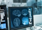 Settimana mondiale del cervello, conoscere l'ictus cerebrale e i fattori di rischio