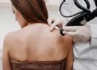 Ipertensione e tumori: curati con il freddo. A Padova il primo caso al mondo