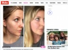 Ecco la donna che ha sconfitto l'acne mangiando tanti grassi