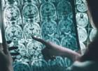 Alzheimer, individuato bersaglio chiave nella sostanza bianca cerebrale