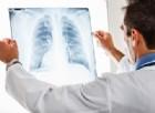 Tumore del polmone, migliora la sopravvivenza con la nuova combinazione
