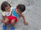 Il dramma dei gemelli siamesi che non possono essere separati