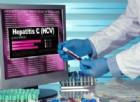 Epatite C, l'Italia in procinto di eliminare virus e malattia