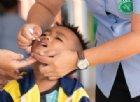 Torna la poliomielite, dopo 18 anni d'assenza in Papua. Preoccupazione internazionale