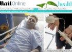 L'uomo senza pene ha finalmente un organo bionico. Ma la sua prima erezione durerà 10 giorni