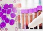 Un nuovo test prevede se avrai la leucemia entro cinque anni