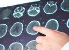 Scoperto un nuovo sottotipo di sclerosi multipla che si comporta in modo diverso