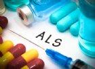 SLA, l'Università di Sassari contribuisce con uno studio a far luce sull'origine della malattia