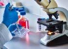 Scienziati riescono a trovare il «freno» delle cellule tumorali
