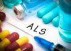 SLA, biologi identificano un promettente farmaco per il trattamento della malattia