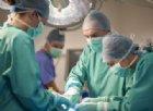 Padova, medici asportano un tumore al cuore senza aprire il torace. I dettagli dell'incredibile tecnica innovativa