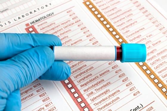 Proteina C reattiva o Pcr: cos'è e quando è alta (© angellodeco | shutterstock.com)