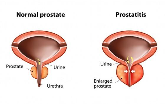 Rappresentazione grafica della prostatite