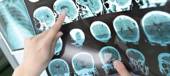 XVII Giornata nazionale contro l'ictus cerebrale