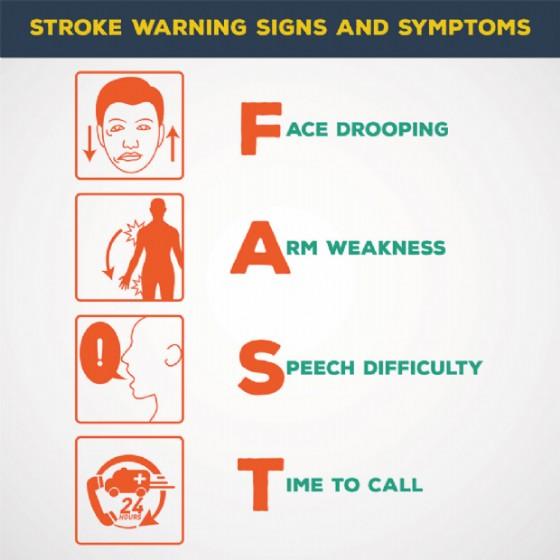 I sintomi che fanno pensare a un ictus