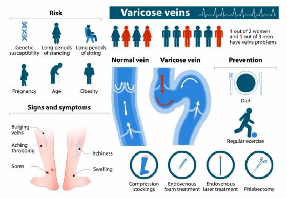 Vene varicose, formazione, prevenzione e cura