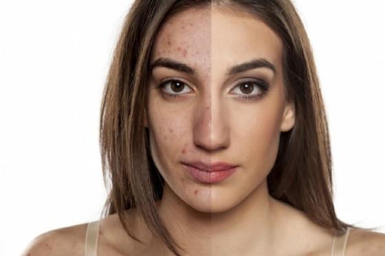 Acne rosacea, si combatte anche con il laser (© Vladimir Gjorgiev | shutterstock.com)