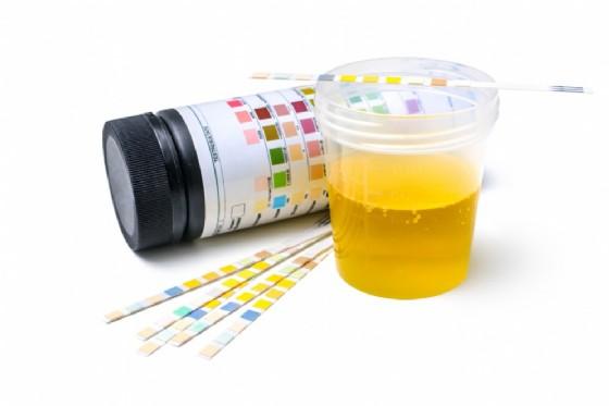 Esame delle urine (© Alexander Raths   Shutterstock)