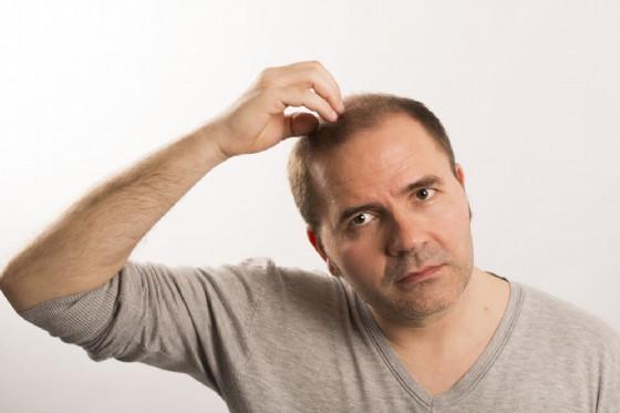 Calvizie e alopecia, un rimedio potrebbe essere l'insulina (© CatherineL-Prod | shutterstock.com)