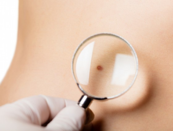 Farmaci per il melanoma (© Oleksandr Lysenko | Shutterstock)