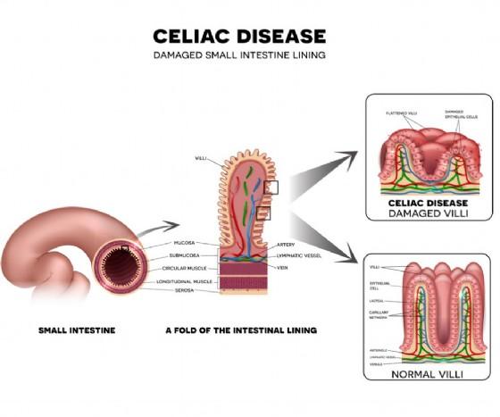 Manifestazione della celiachia a livello intestinale