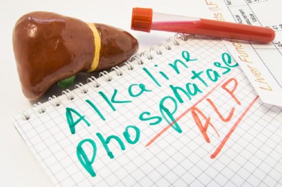 Fosfatasi alcalina ALP