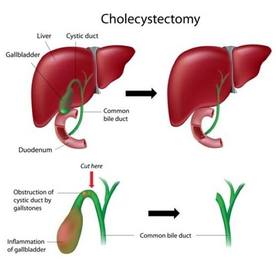 Intervento di colicistectomia