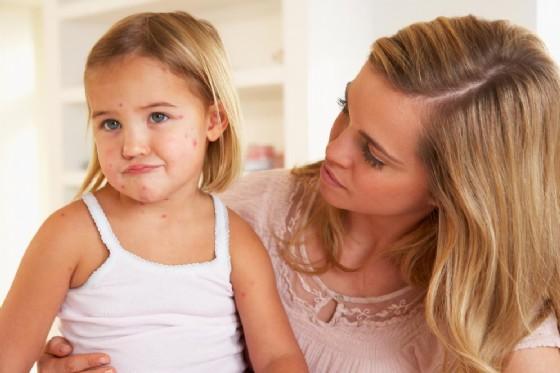 Allarme morbillo a causa dei genitori anti-vaccino