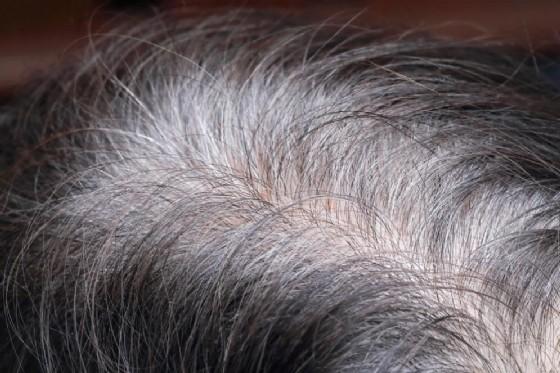 Uomini, legame tra capelli bianchi e rischio cardiaco