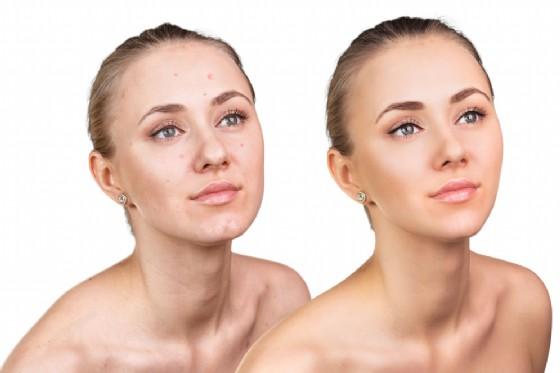 La terpia biofotonica per la cura dell'acne (© Kotin | Shutterstock)