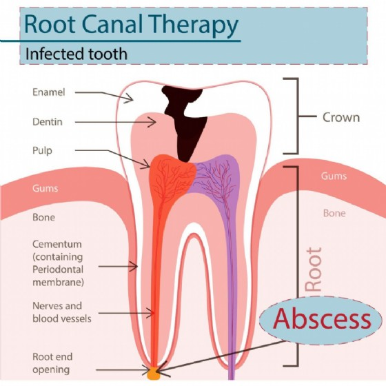 Devitalizzazione di un dente. Spesso associata alla formazione di un granuloma
